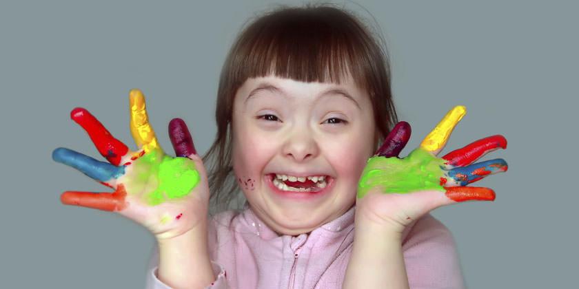 Photo of Yopal se une al Día Mundial del Síndrome de Down: «No dejar a nadie atrás»